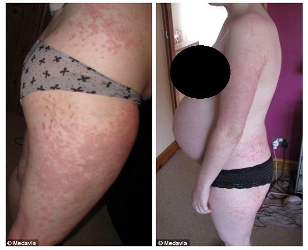 Allergia in Gravidanza: Eruzione Polimorfa della Gravidanza