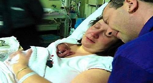 nasce a 24 settimane salvata dalla mamma