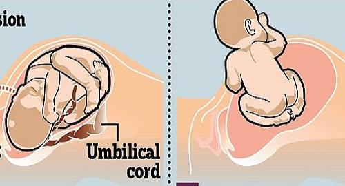 parto cesareo naturale nuova procedura