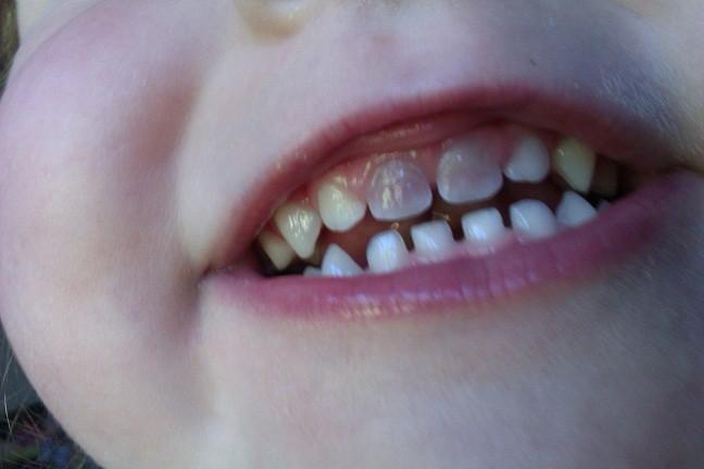 Denti Macchiati Nei Bambini Cure E Cause