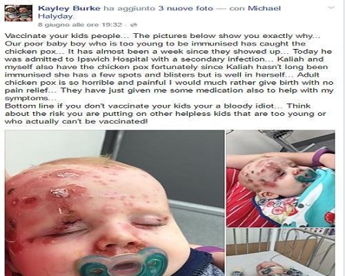 neonato non vaccinato varicella