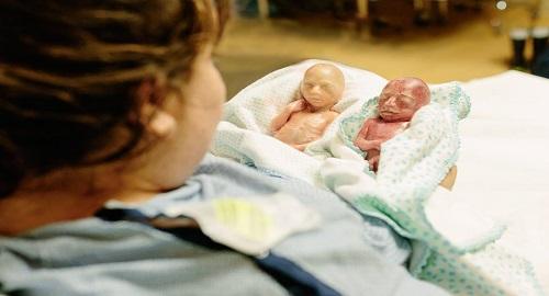 Foto di prematuri 22 settimane