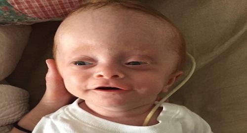 coppia adotta un bimbo e sono gemelli