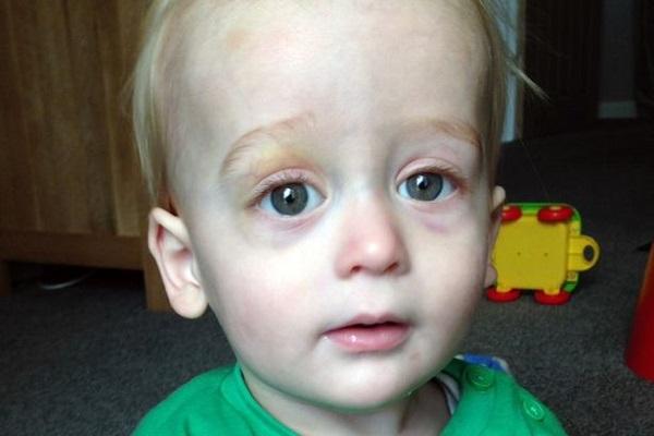 Livido su un Occhio: Possibile Sintomo di un Tumore Raro