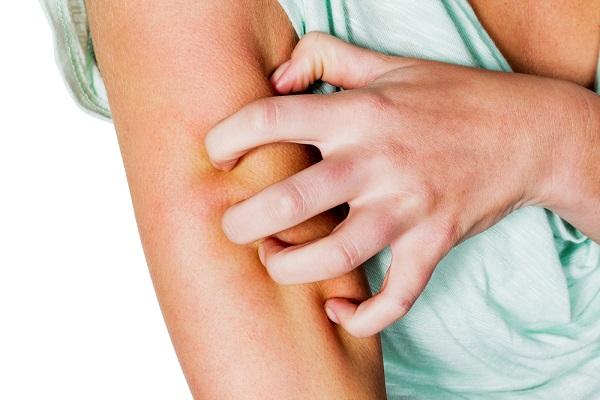 rimedi naturali contro le punture di zanzara