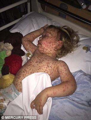 Peggior Caso di Varicella: l'Incubo di un Bimbo di 2 Anni