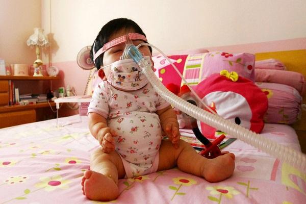 Pei Shan, l'Adolescente Imprigionata nel Corpo di una Bambina