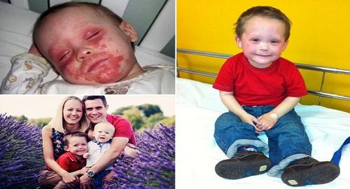 eczema infantile curato dalla mamma