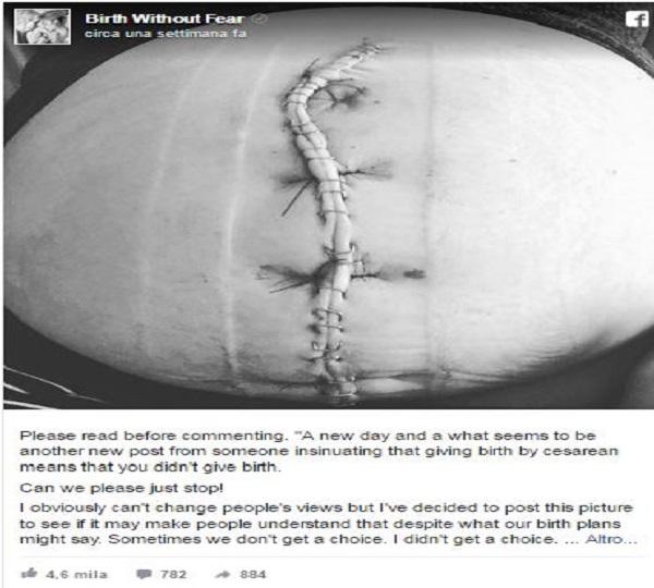 partorire con il cesareo come il parto naturale