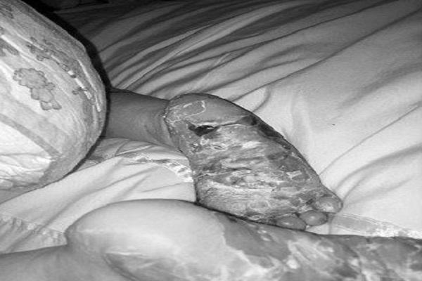 epidermolisi bollosa mamma giudicata e accusata