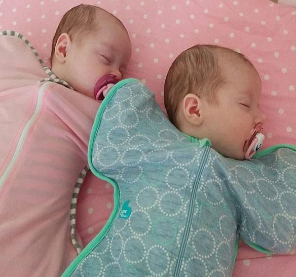 superfetazione due bimbe nascono insieme ma non sono gemelle