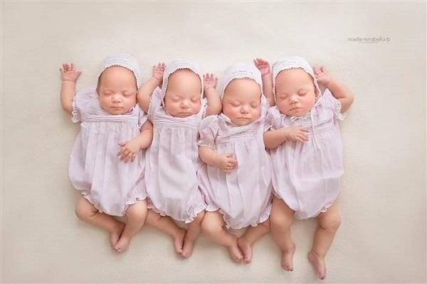 parto 4 gemelle identiche