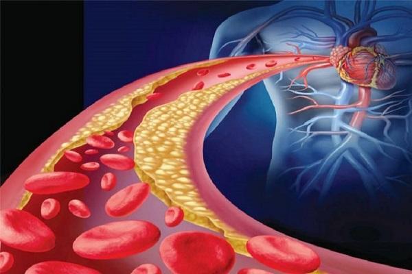 cibi che puliscono le arterie e aiutano il cuore