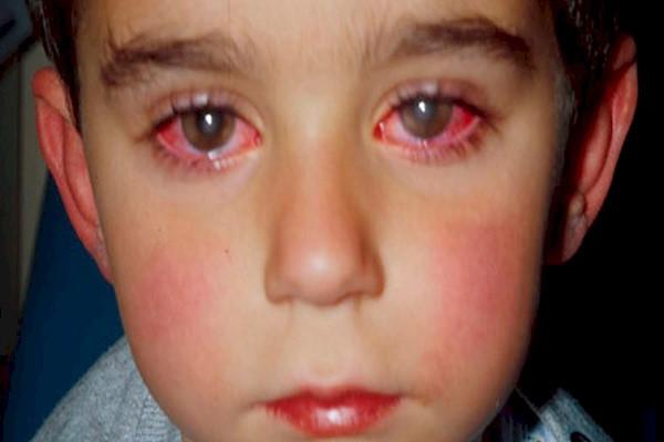 giochi pericolosi per gli occhi laser