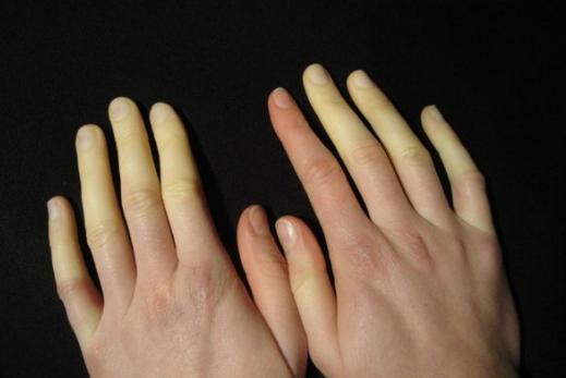 sintomi di malattia accertamenti medici