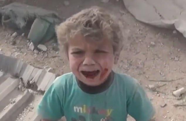 Bambino siriano ferito piange e cerca la mamma