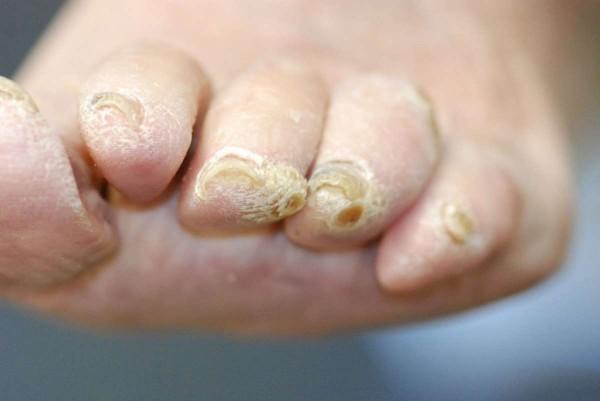 Medicine efficaci per trattamento di mycoses di unghie