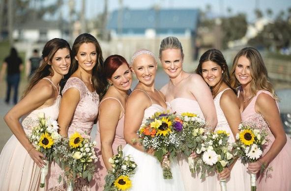 Kylie Bamberger, malata di alopecia, si sposa senza parrucca