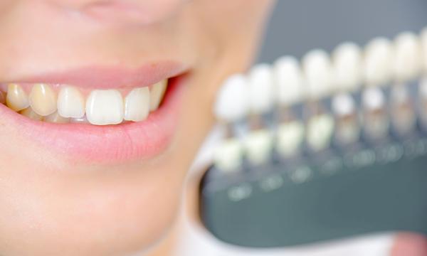 sbiancare i denti rimedi naturali