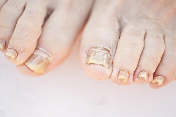 cambiamenti delle unghie, quando sono sintomo di disturbi