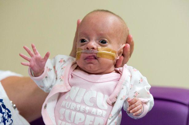Poppy Wicks: più piccola neonata prematura sopravvissuta