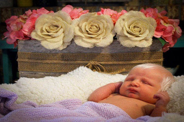 Nata coi capelli bianchi: neonata affetta da albinismo parziale