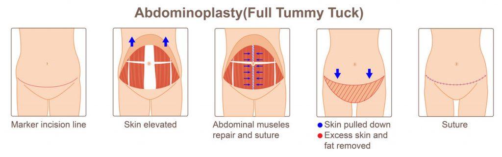 Diastasi del retto addominale, intervento