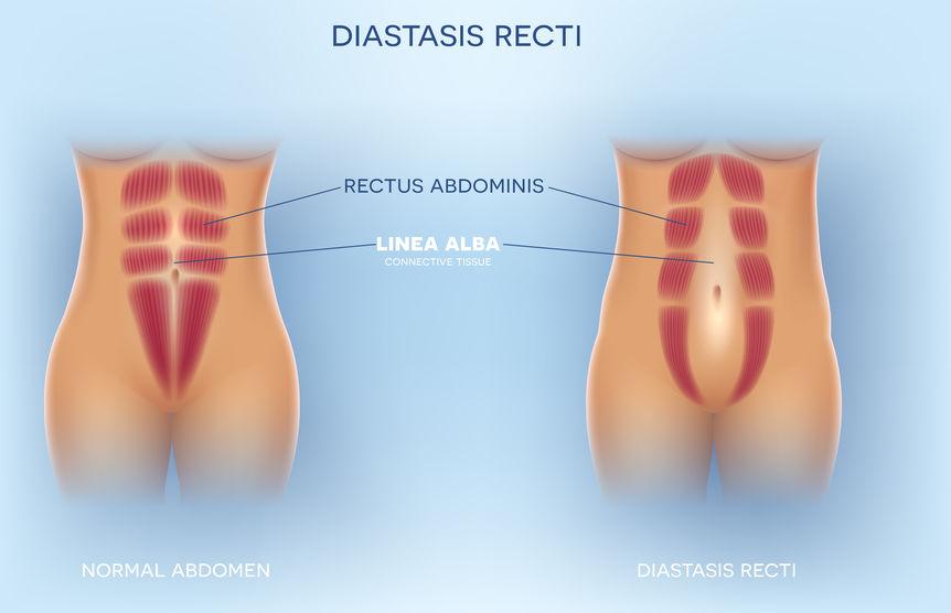 Diastasi del retto addominale - cause