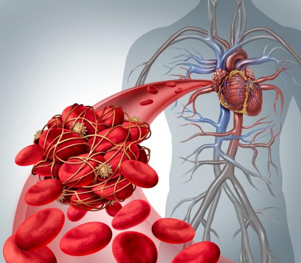 Colesterolo livelli e pericoli