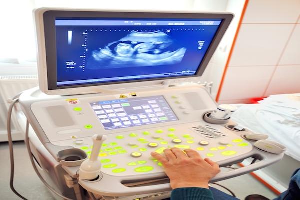 gravidanza ectopica diagnosi precoce