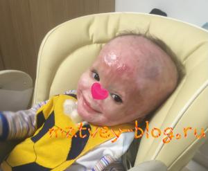 Matvey Zakharchenko neonato ferito in un incendio