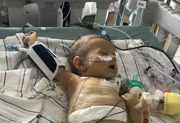Bimba affetta da atresia biliare: la storia di Sloan St. James