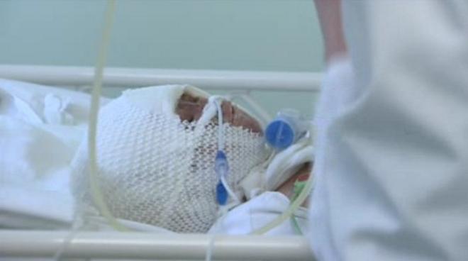 Matvey Zakharchenko: neonato ferito in un incendio