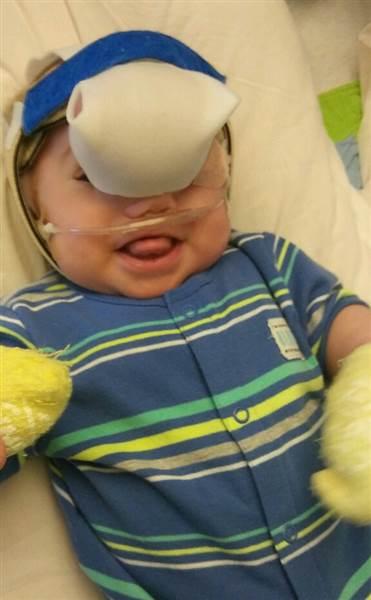 Zakary Riegel: nato con rara malformazione, oggi sorride