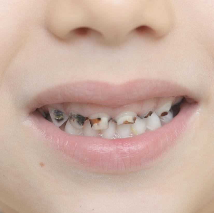 Carie nei denti da latte come evitarle