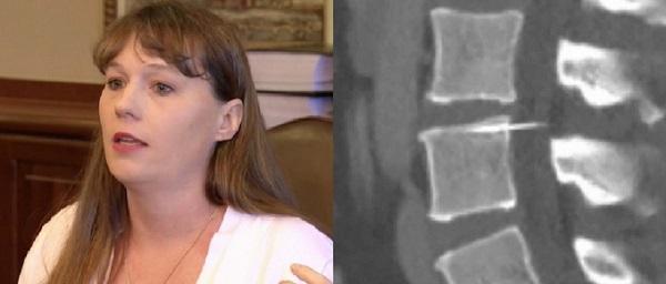 Amy Bright: mamma rischia la paralisi 14 anni dopo il parto