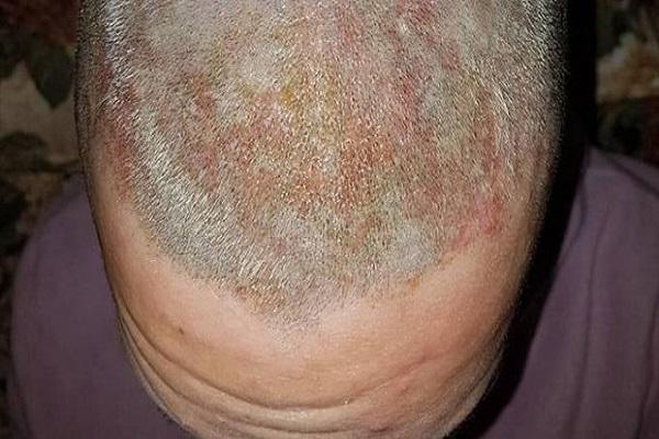Ustioni di 2° grado alla testa: è accaduto dal parrucchiere