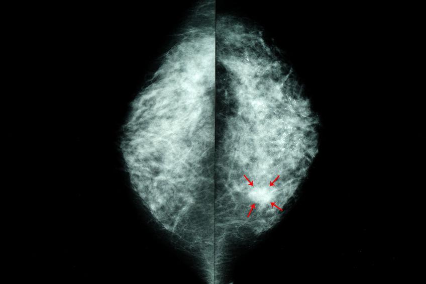 ciste dura al seno