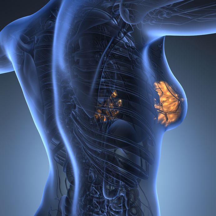 nodulo al seno sintomi