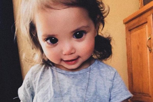 Mehlani Ramirez: bimba dagli occhi enormi, condizione rara