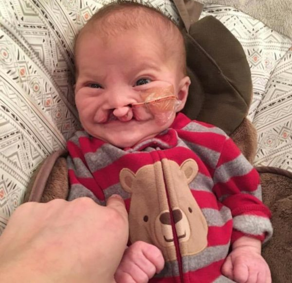 Brody Eidam: affetto da labiopalatoschisi, ritrova il sorriso