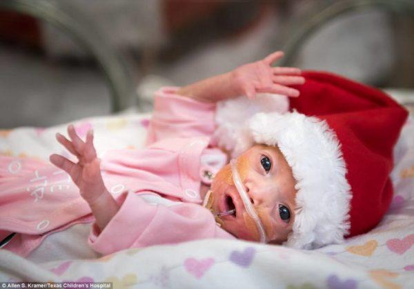 terapia intensiva neonatale del Texas Children's Hospital di Houston