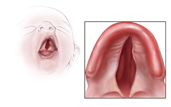 sindrome di Treacher-Collins