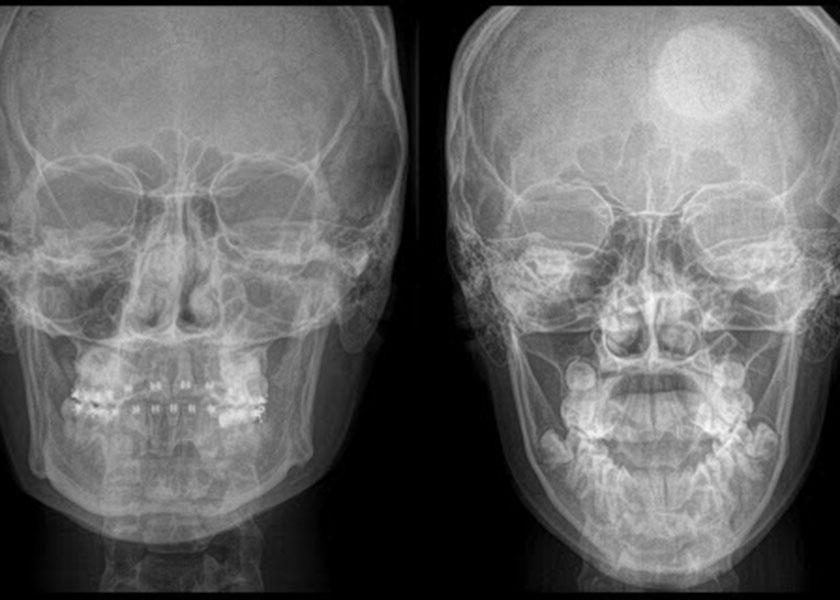 La Skullbreaker Challenge espone al pericolo di morte, lo spiegano i medici: