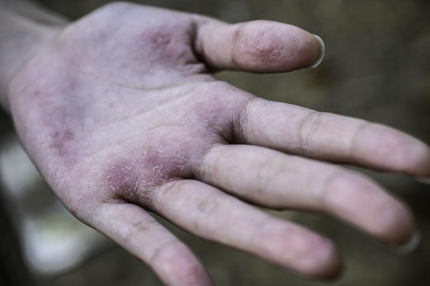 lavarsi troppo spesso le mani consuma la pelle