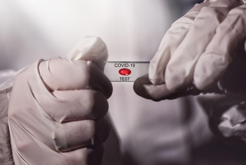 Contagi di ritorno Covid-19 test sierologici