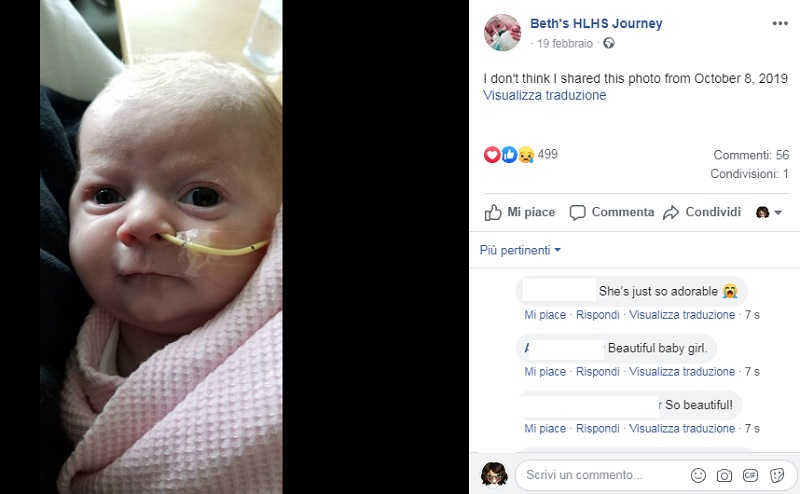 Beth Hutt muore a 5 mesi per infezione da Aspergillus