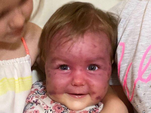 Ariya, la bambina di Benissa che combatte la malattia rara di Sturge Weber.