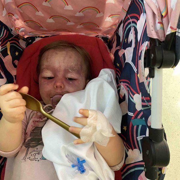 Ariya, la bambina affetta dalla Sindrome di Sturge Weber. Le costose cure necessarie.