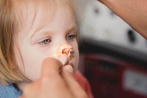 Epistassi nei bambini: sangue dal naso, cosa fare